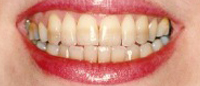 Severely discolored teeth