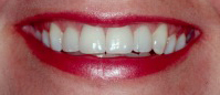 Smile with bright white teeth