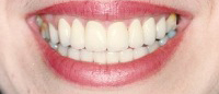 Smile with flawless white teeth