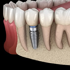 dental implant in the lower jaw