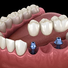 two dental implants supporting a dental bridge