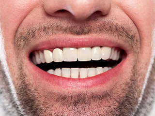 Closeup of man with healthy smile