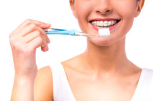 woman with braces brushing teeth