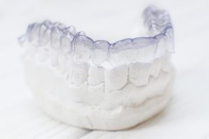 Invisalign in Edison on dental mold